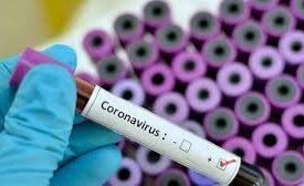 İran və İtaliyadan qayıdan 2 Azərbaycan vətəndaşında koronavirus aşkarlanıb