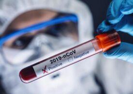 COVİD-19: Azərbaycanda 417 yeni yoluxma faktı qeydə alınıb